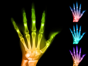Los Angeles Carpal Tunnel Syndrome Attorney