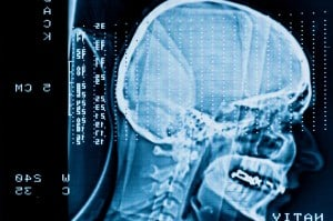 Long-Term Effects Of Brain Injury