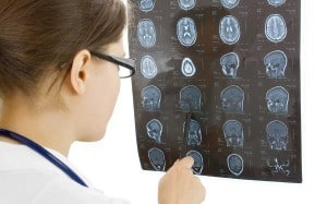 Tips For Filing For Disability Benefits After Suffering A Traumatic Brain Injury